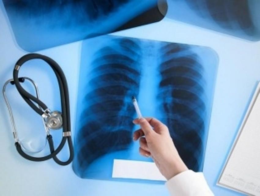 ВПетербурге будут принудительно лечить 2-х туберкулезников