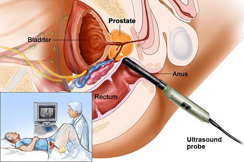 Альфа адреноблокаторы при аденоме предстательной железы
