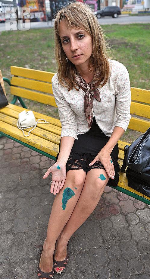 Последствия некрасивой стычки... Фото: Мария РЕМИЗОВА