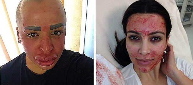 Джордан не только пытается одеваться как Ким, но и следует ее бьюти-режиму, делая те же процедуры, что и она – например, «кровавую» маску для лица или уколы ботокса. Фото: Instagram.