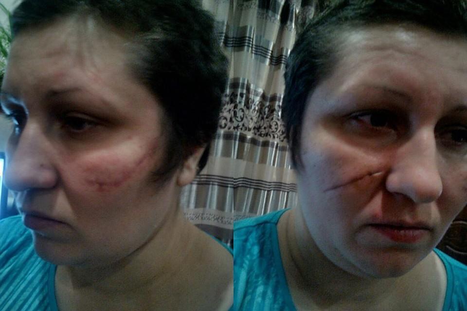 Две недели сибирячка провела в Кыштовской центральной районной больнице - в напоминание о «схватке с медведем» на ее обеих щеках остались огромные шрамы, от которых женщину могут избавить только пластические хирурги.