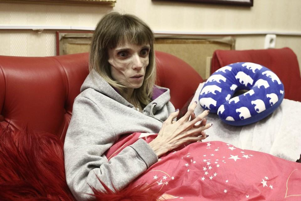 17-килограммовая Кристина Корягина начала набирать вес после лечения в Нижнем Новгороде