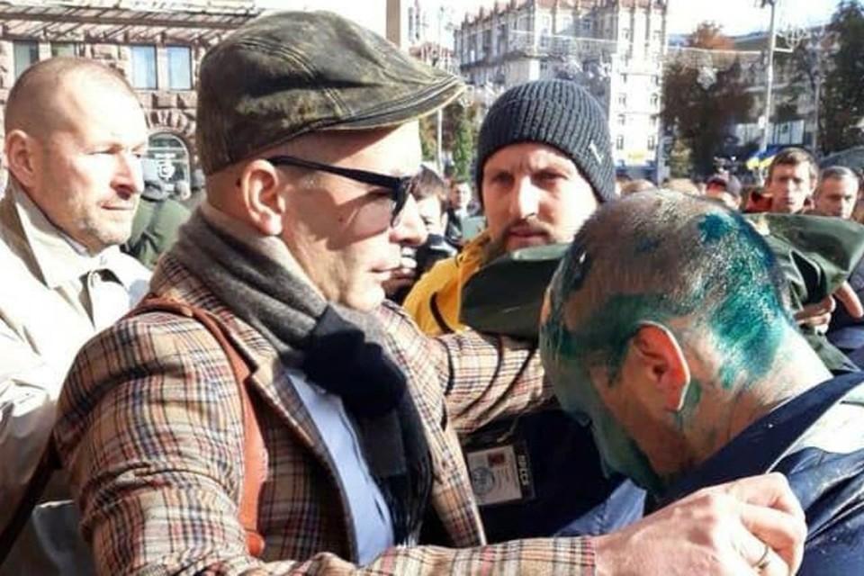 Депутата Киевского городского совета Сергея Гусовского избили и облили зеленкой