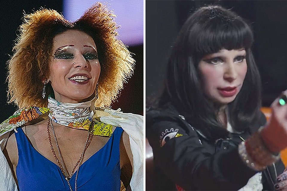 Жанна Агузарова увеличила губы и изменилась до неузнаваемости