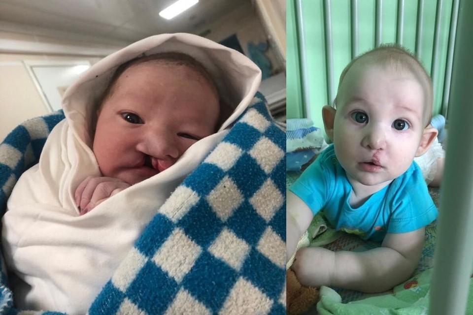 До и после операции. Фото: личный архив.