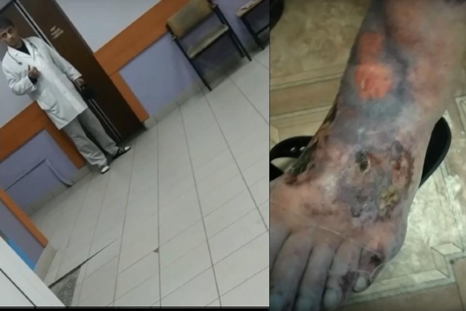 Вот такая рана у одного из пациентов, которому приходится выбивать процедуру по перевязке.