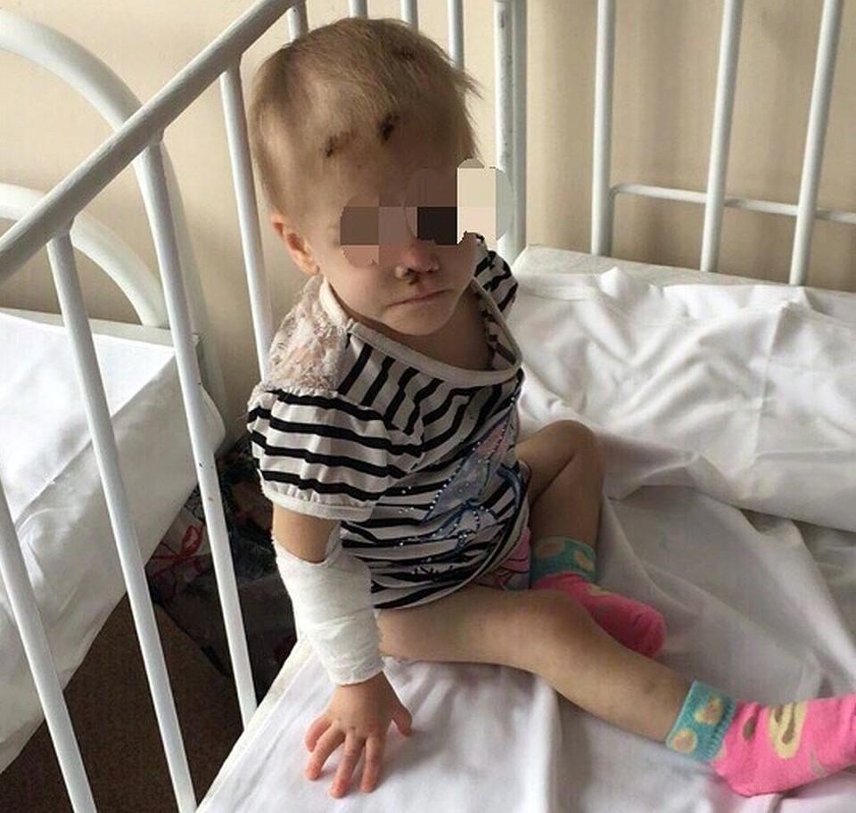 Девочка оказалась в больнице в 2018 году в ужасном состоянии. Фото: предоставлено волонтерами