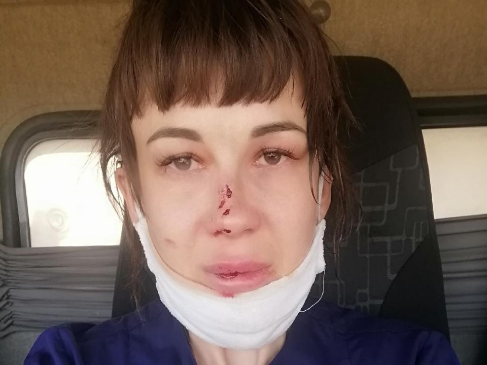 На фельдшера Альбину в Энгельсском районе напал пьяный пациент. Фото предоставлено героем публикации