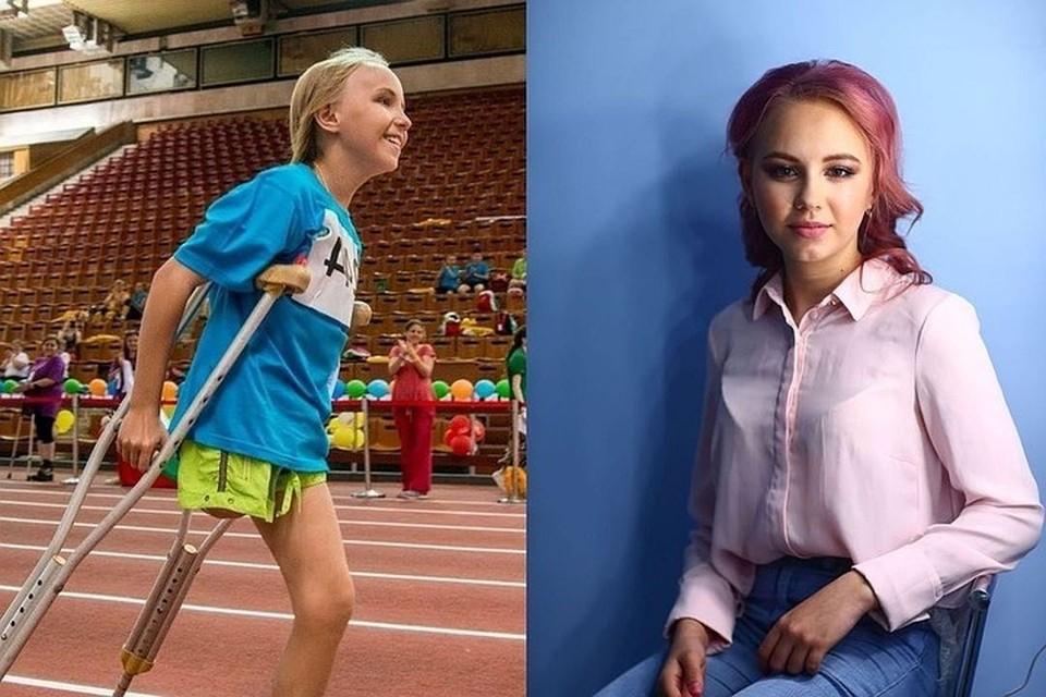«Сначала над ней смеялся весь класс, а сейчас она носит юбки»: как изменилась жизнь девочки, которой четыре года назад ампутировали ногу в Новосибирске