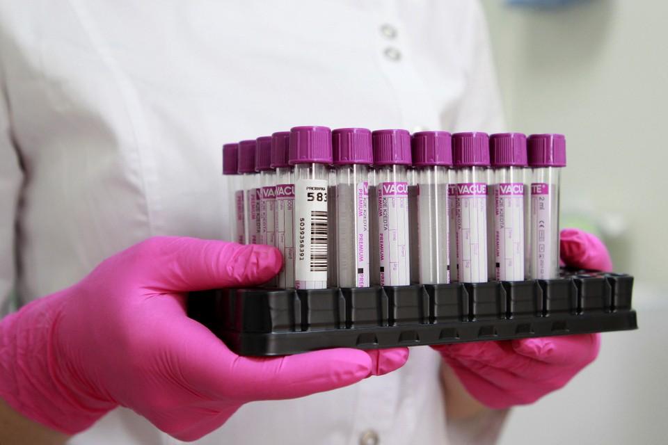 82 случая заражения коронавирусом выявлено в Иркутской области за сутки