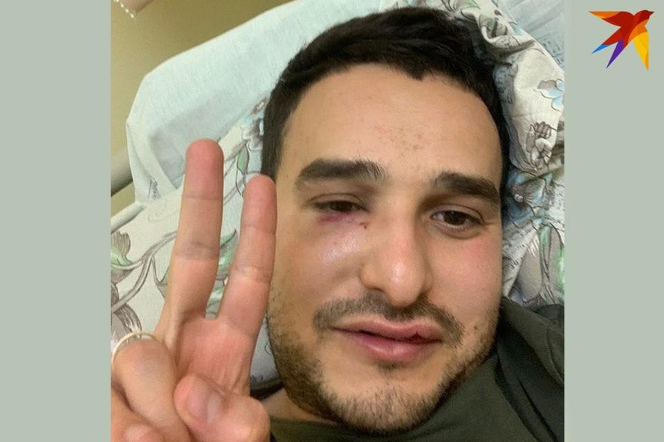 Максим Хорошин сейчас в больнице. Он рассказал подробности задержания и о своем самочувствие. Фото: личный архив.