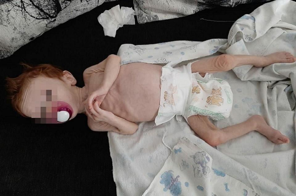 """У малышки диагностировали дистрофию третьей степени. Фото: предоставлено читателями """"КП"""""""