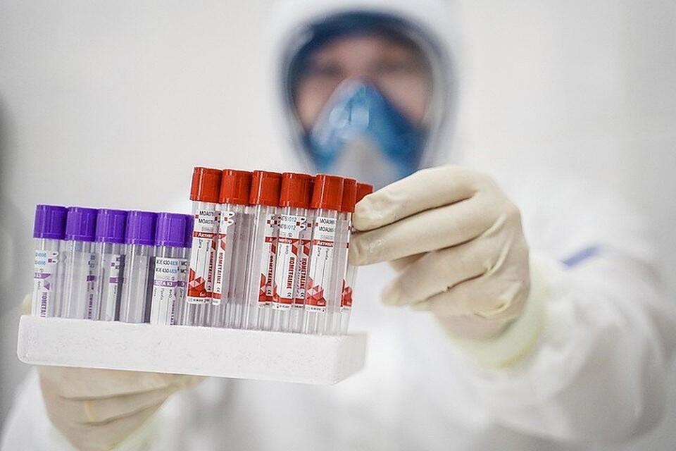 Врач рассказал, как расшифровать результаты анализов на антитела