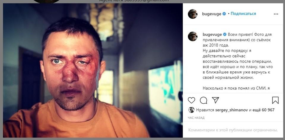 По словам актера, это фото для привлечения внимания. Оно со съемок 2018 года.