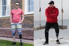 «Во время ампутации я был в сознании и даже шутил»: парень откровенно рассказал, как победил рак, но лишился ноги