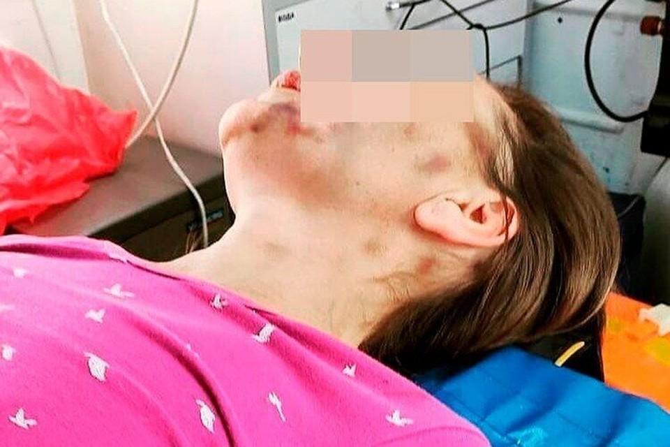 Вскоре после того, как ее оштрафовали, Ольга попала в больницу, где чуть у нее остановилось сердце