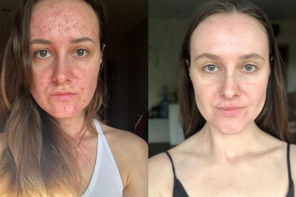 «Казалось, эти прыщи никогда не закончатся»: сибирячка рассказала, как смогла победить акне без единой таблетки и косметологов
