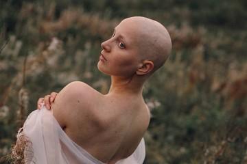 «Началось с маленькой шишечки на шее»: 21-летняя иркутянка победила рак третьей степени