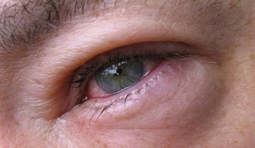 Кровоизлияние в глаз: какими симптомами проявляется и чем его лечат
