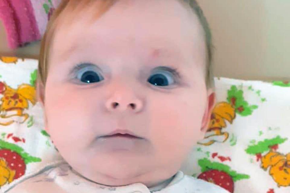 Варя родилась с врожденной аномалией, которая называется гипераммонемия