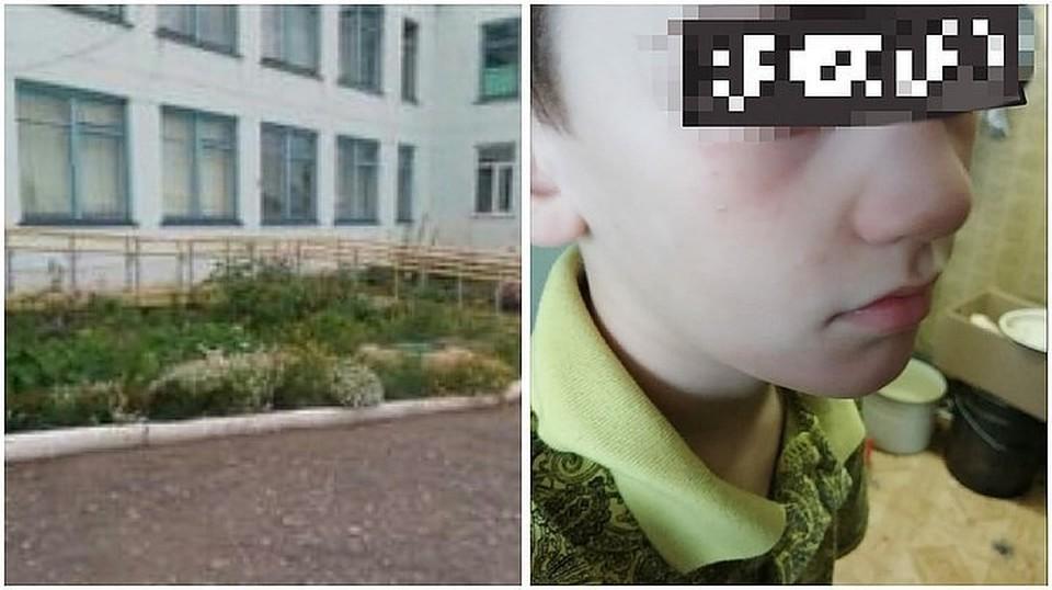 Инцидент произошел в Усть-Заостровской школе. Фото мальчика: «Инцидент Омск»