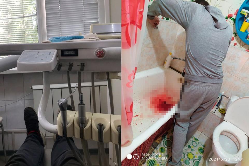 При лечении у мужчины началось кровотечение.