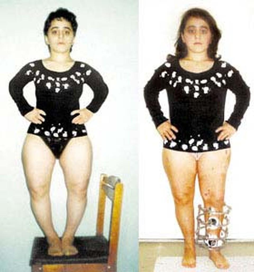 Малютка Зульфия до операции (слева) и после.