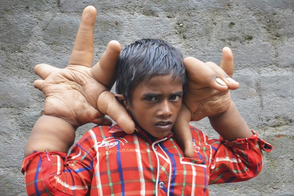 Восьмилетний Калим, родившийся в Восточной Индии, показывает фотографу свои аномально большие руки. Фото: Barcroft Media/All Over Press