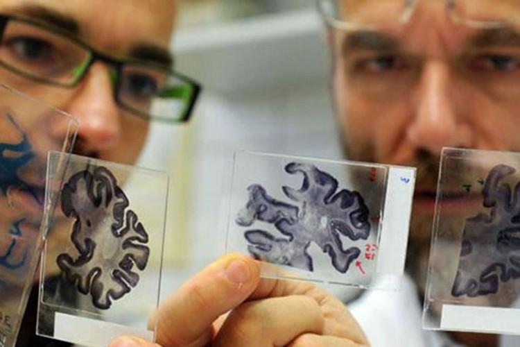 Одна из причин деменции - атеросклероз сосудов головного мозга.