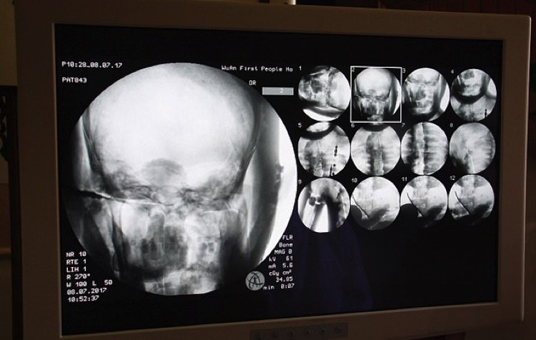 Сканы, демонстрирующие хорошее состояние костей мумии и ее мозга.