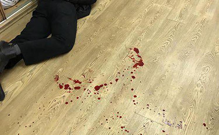 """В редакцию радиостанции """"Эхо Москвы"""" ворвался неизвестный мужчина с ножом. Он ранил радиоведущую Татьяну Фельгенгауэр. Фото: """"Эхо Москвы"""""""