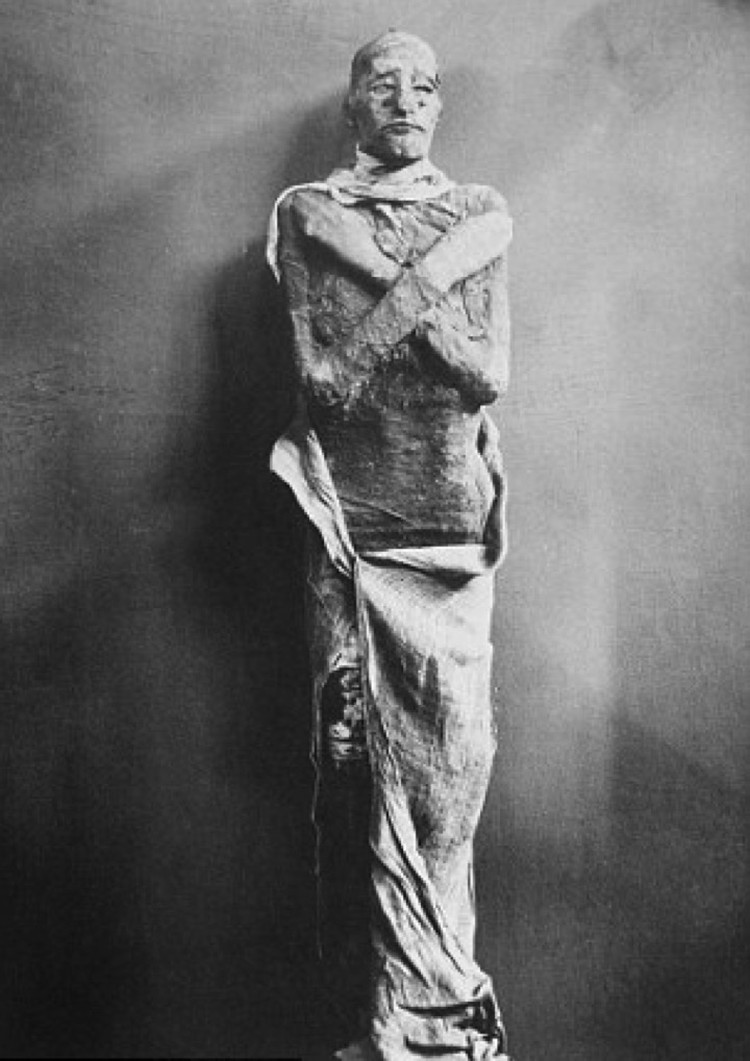 Сам Рамсес III, убитый заговорщиками.