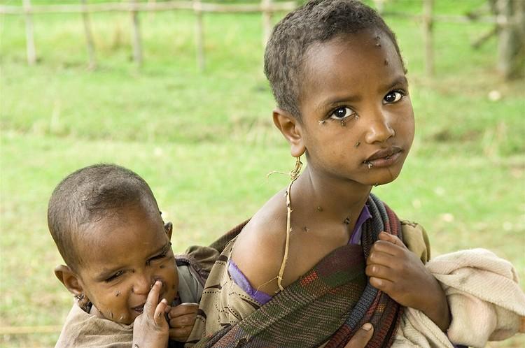 Жизнь в африканской деревне - не сахар. Бедность и болезни здесь на каждом шагу.