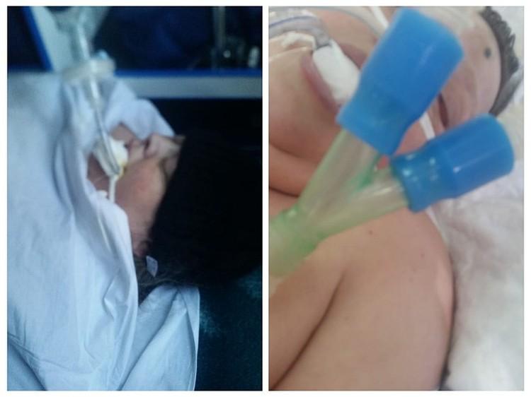Даже спустя неделю на лбу женщины чернел синяк от удара. Кроме того, она сильно отекла и уже не могла сама дышать.