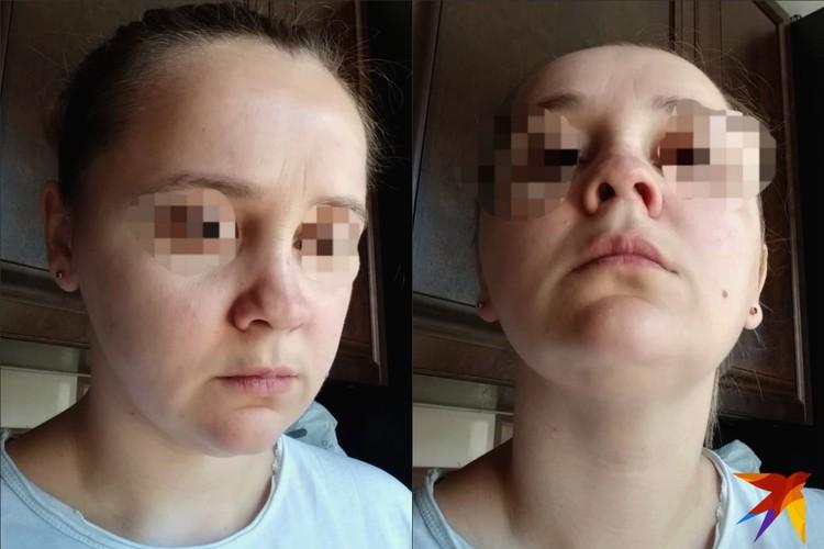 После операции, проведенной на дому, форма носа девушки не изменилась, зато появились дополнительные осложнения.