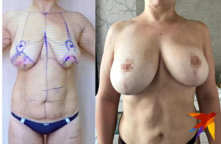 На фото слева Александра перед первой операцией у Верди, справа - результат после.