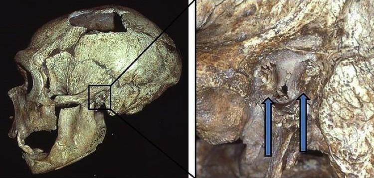Наросты на черепах найдены у половины обследованных неандертальцев.