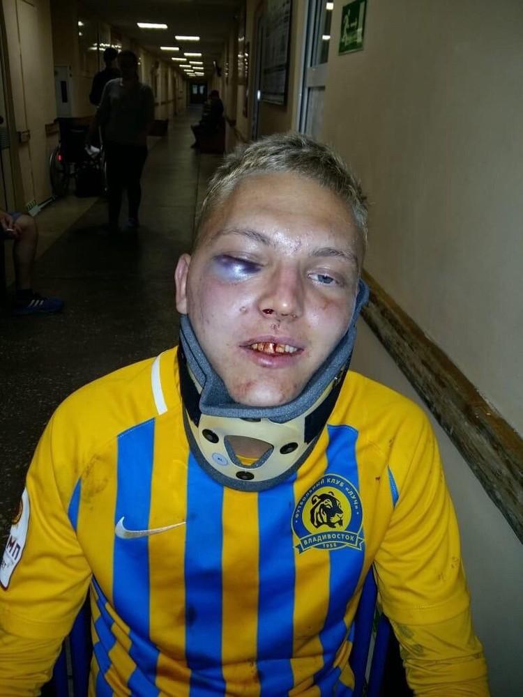 Фотографией тяжело травмированного Дмитрия поделился известный спортивный комментатор Василий Уткин