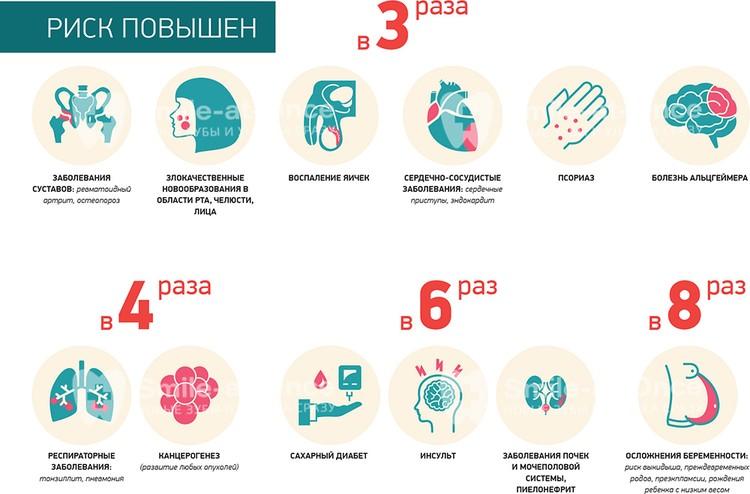 Инфографика наглядно демонстрирует, к каким последствиям может привести пародонтит, если не заниматься его лечением.