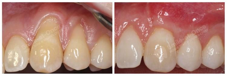 Рецессия десны до и после лечения. Фото: Smile-at-Once