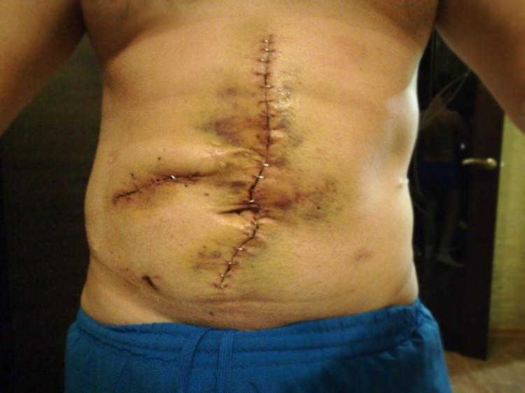 Парень пережил несколько операций, но виновных в этом, оказывается, нет. Фото: предоставлено Евгением Шатиловым.