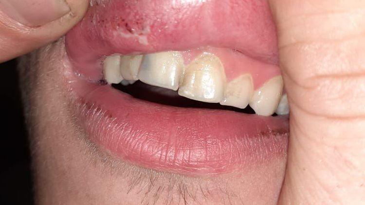 Вячеслав уверяет, что чуть не лишился зубов, губа тоже повреждена. Фото: предоставлено родственниками