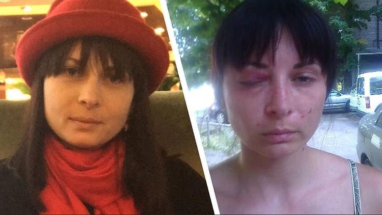 Дарья Мастикашева до и после пыток. Фото: Фейсбук