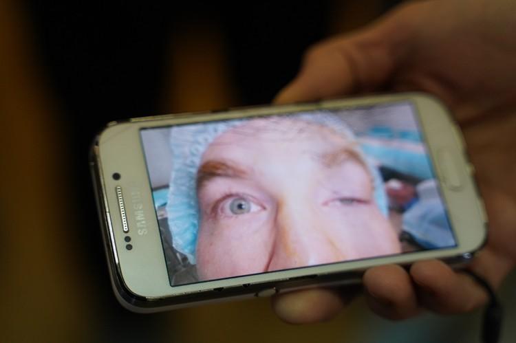 Так выглядел глаз Флавио до операции