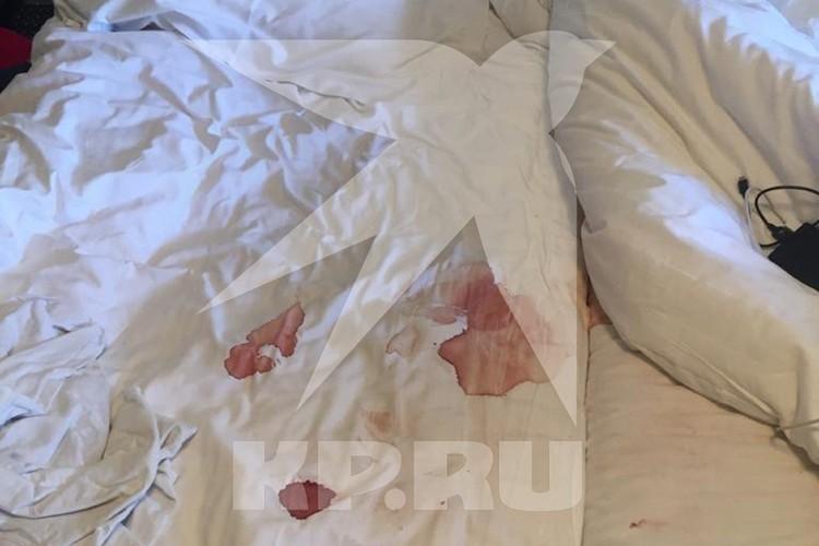 Следы крови повсюду в номере.