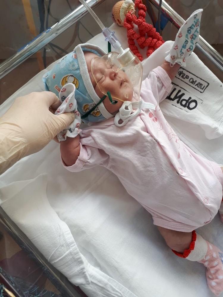 Реаниматологи–неонатологи оценили новорожденную в два-четыре балла по шкале Апгар. Фото: ПЦ РО.