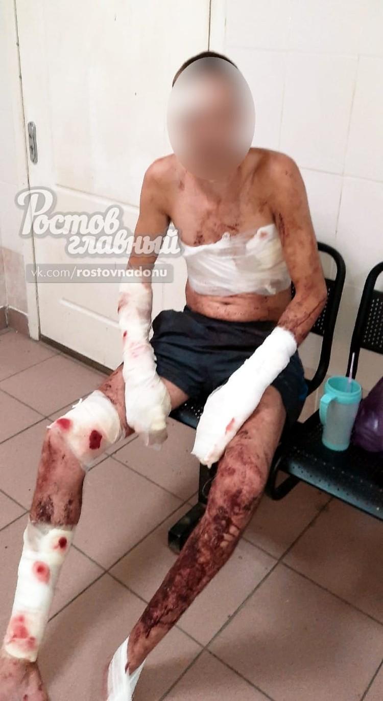 Медики обработали глубокие укусы по всему телу ростовчанина, сделали уколы, рентген и наложили десятки швов. Фото: vk.com/rostovnadonu