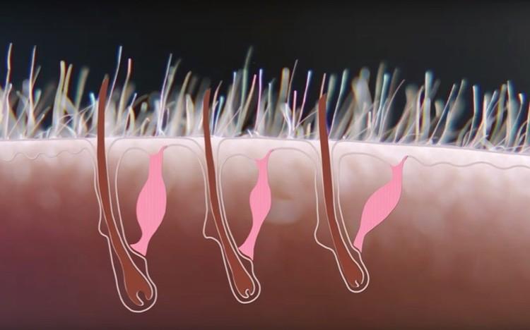 Волоски приподнимают крошечные мышцы, расположенные рядом.