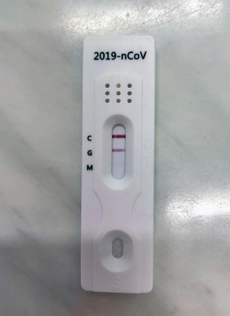 Так выглядит экспресс-тест на коронавирус.