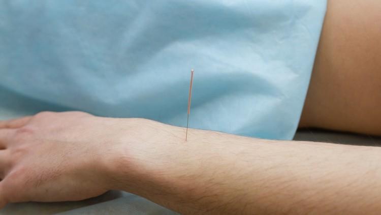 Во время процедуры используются одноразовые стерильные иглы